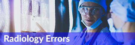 Radiology Errors Medical Malpractice
